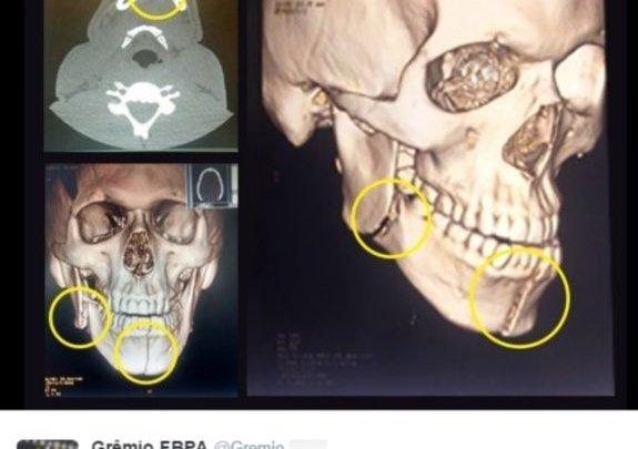 Exame confirma duas fraturas na mandíbula do jogador do Grêmio Bolaños