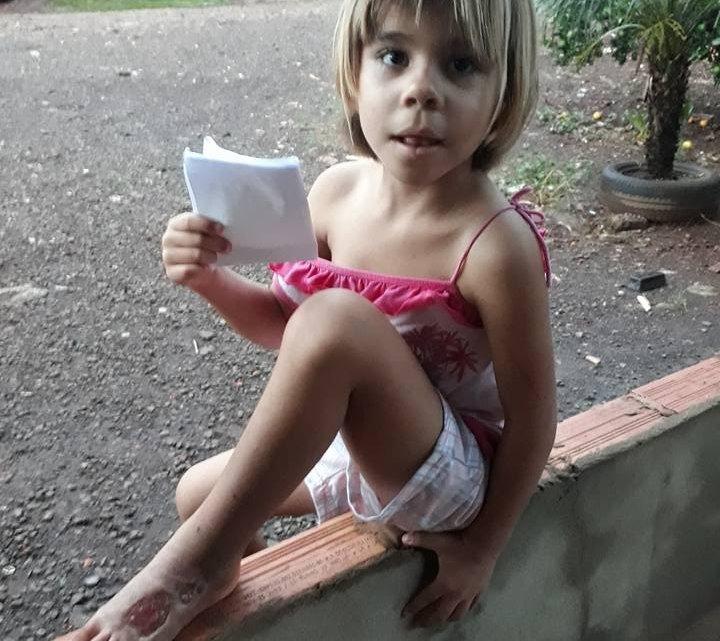 Chapecó – Menina é picada por cobra e precisa de ajuda