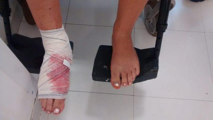 Irmão atinge o pé da irmã com disparo de calibre 12 no interior de Chapecó