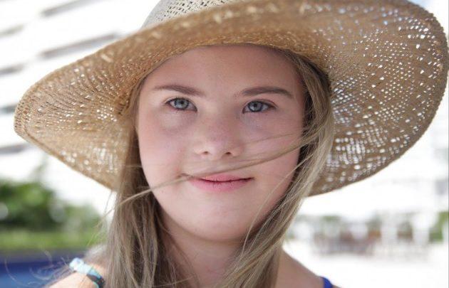 Modelo catarinense com Síndrome de Down faz sucesso na internet