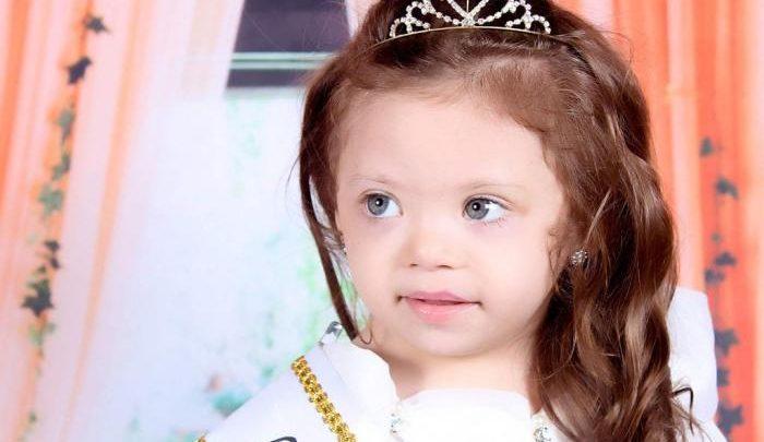 Menina com Down vence concurso de beleza infantil realizado em SC