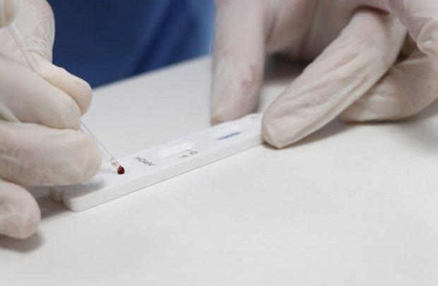 Governo de SC distribui 32 mil testes rápidos para Covid-19 aos municípios catarinenses