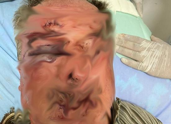Agricultor de 75 anos é brutalmente agredido pelo próprio filho no RS