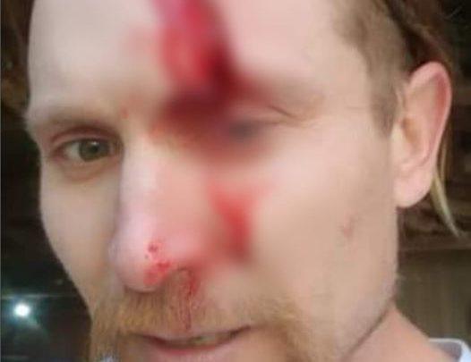 Vereador de Indaial sofre ferimentos após acidente com motosserra