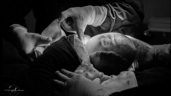 Fotos e vídeo: fotógrafa faz foto e vídeo de nascimento de bebê empelicado no Oeste de SC